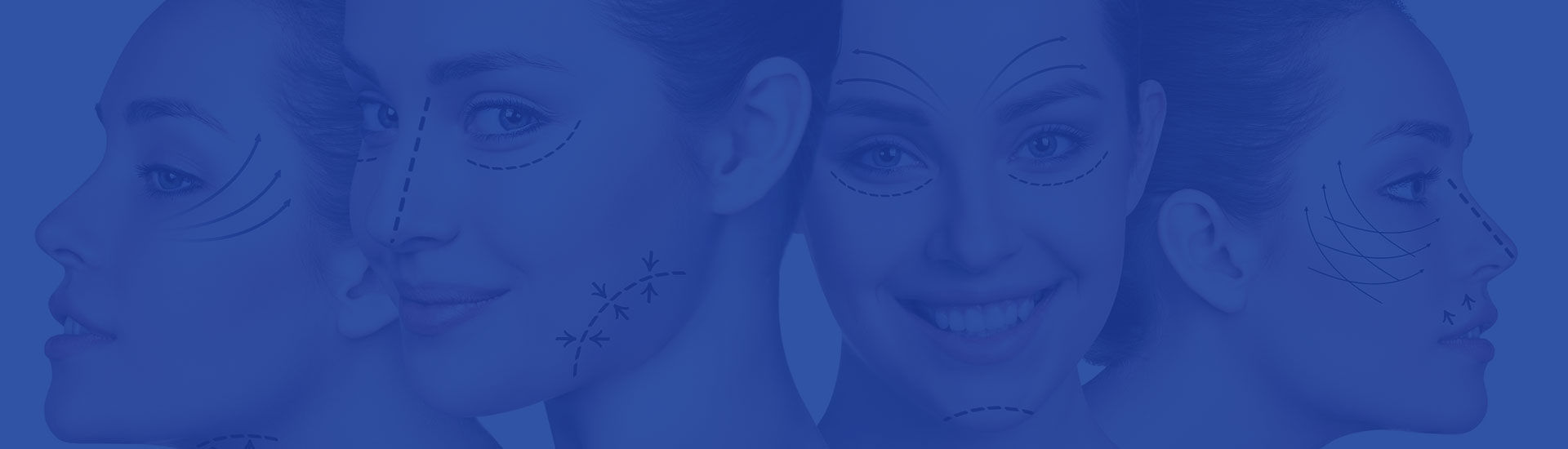 Laser Resurfacing Houston, TX