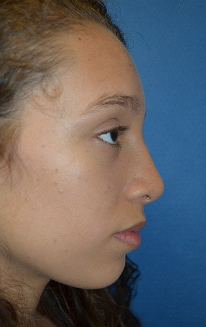 After Rhinoplasty 1 Houston, TX