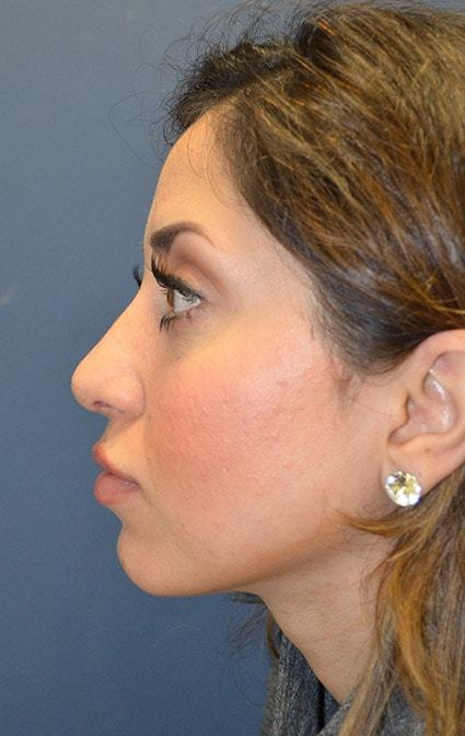 After Rhinoplasty 2 side Houston, TX