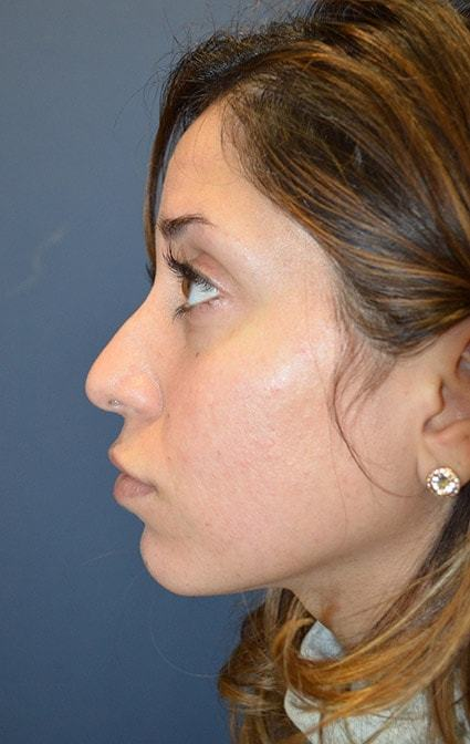 Before Rhinoplasty 2 side Houston, TX