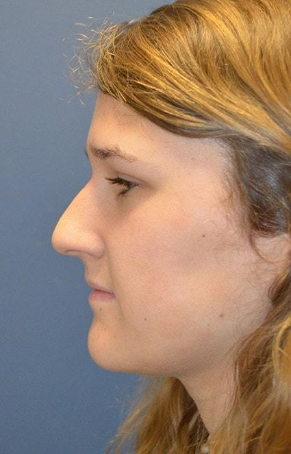 Before Rhinoplasty 3 Houston, TX