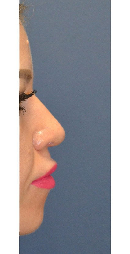 After Rhinoplasty 4 Houston, TX