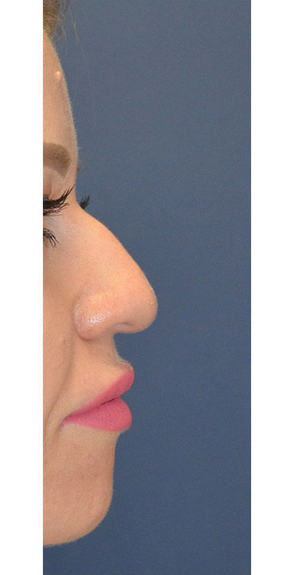 Before Rhinoplasty 4 Houston, TX