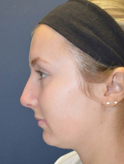 After Rhinoplasty 5 Houston, TX
