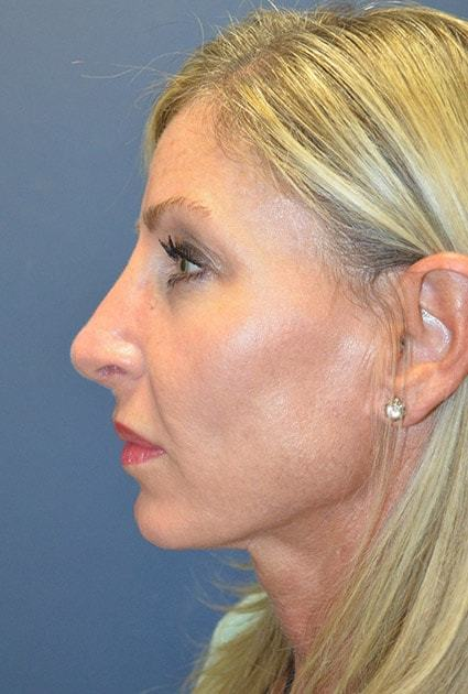After Rhinoplasty 6 Houston, TX