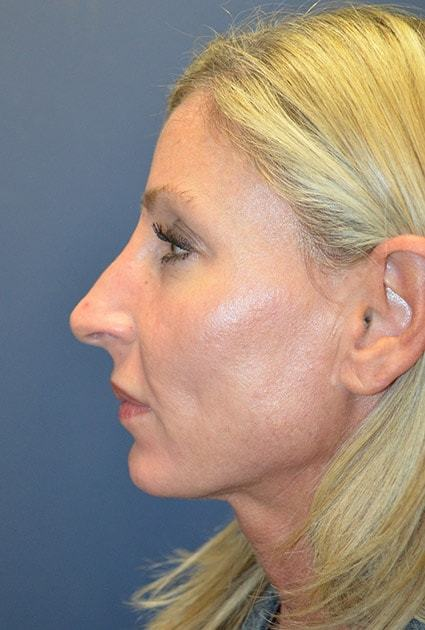 Before Rhinoplasty 6 Houston, TX