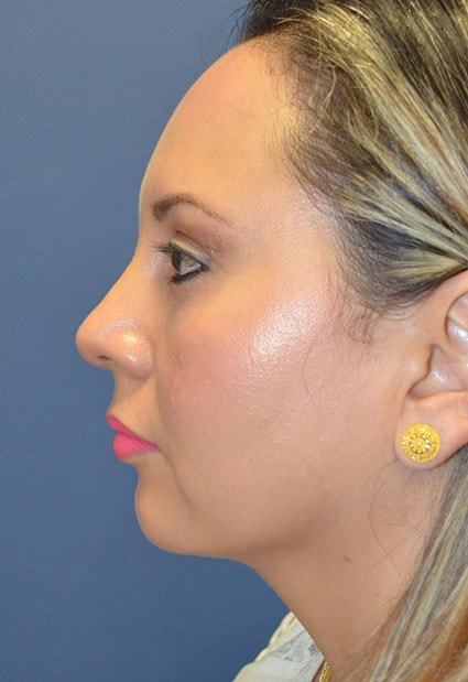 After Rhinoplasty 9 Houston, TX