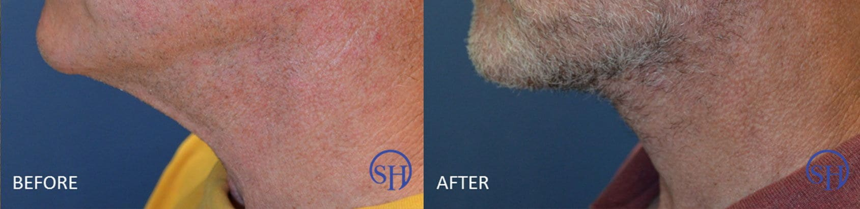 Before and after photo of male necklift.