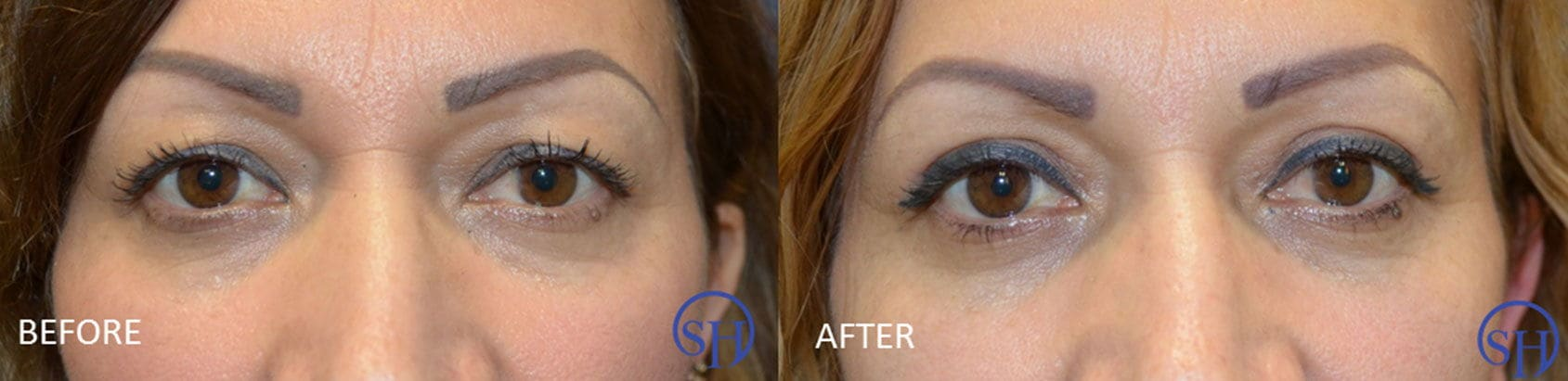 Before and after photo of eyelid lift.