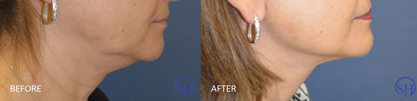 Before and after photo of female necklift.