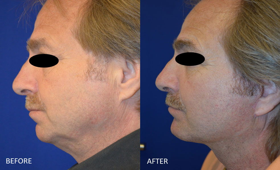 Before & After Chin implant and Facelift