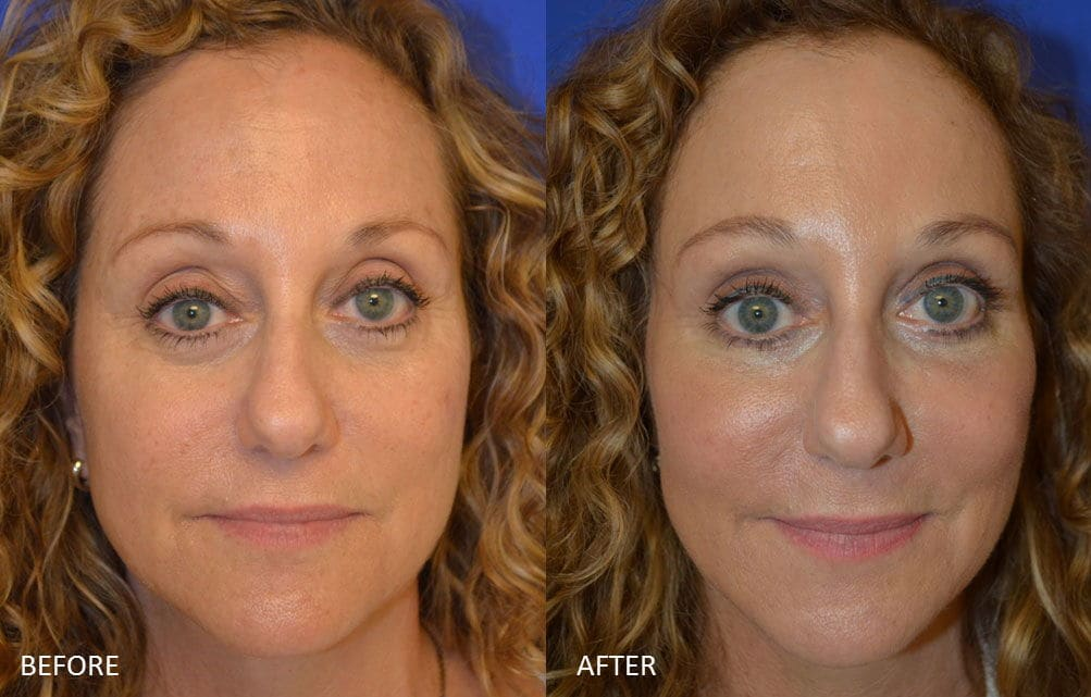 Before & After Fat transfer to Brow+Midface, Upper, Lower Blepharoplasty