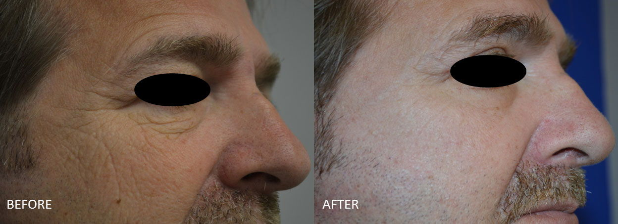 Before & After Fractional Co2 Laser Resurfacing