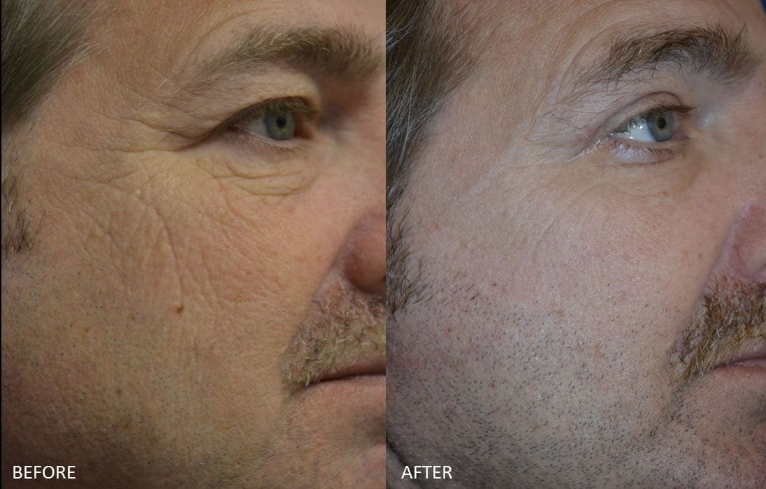 Before & After Fractional Co2 Laser Resurfacing 2