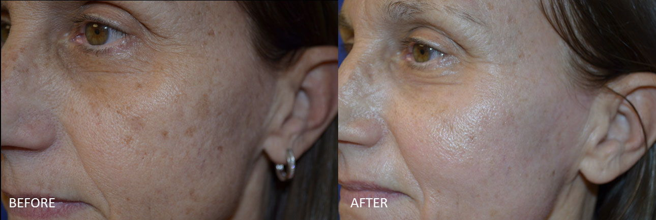 Before & After Laser Resurfacing 3