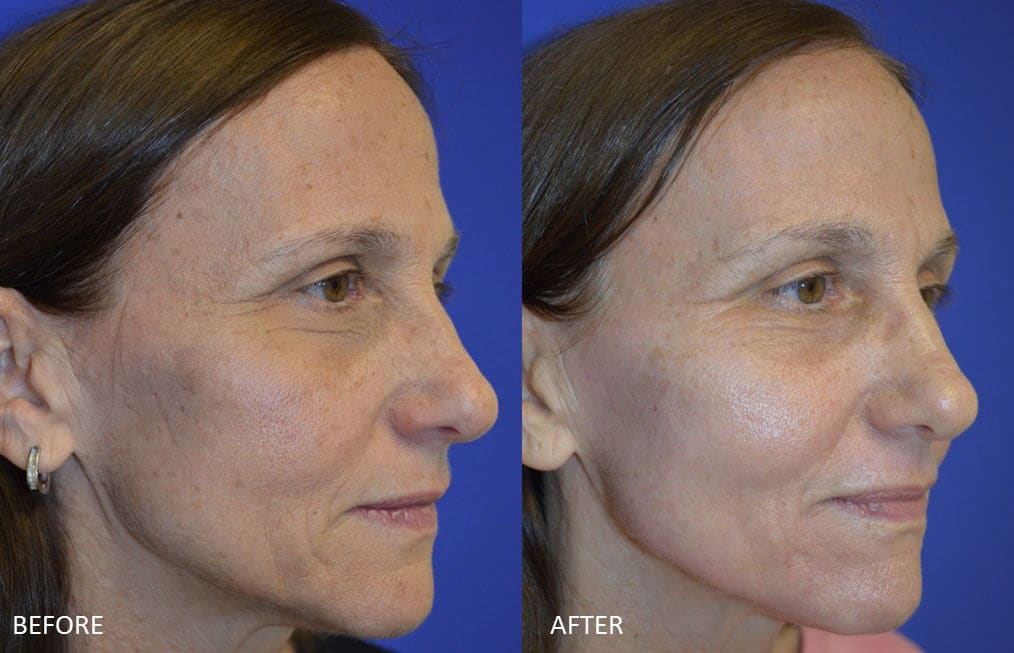 Before & After Laser Resurfacing 4