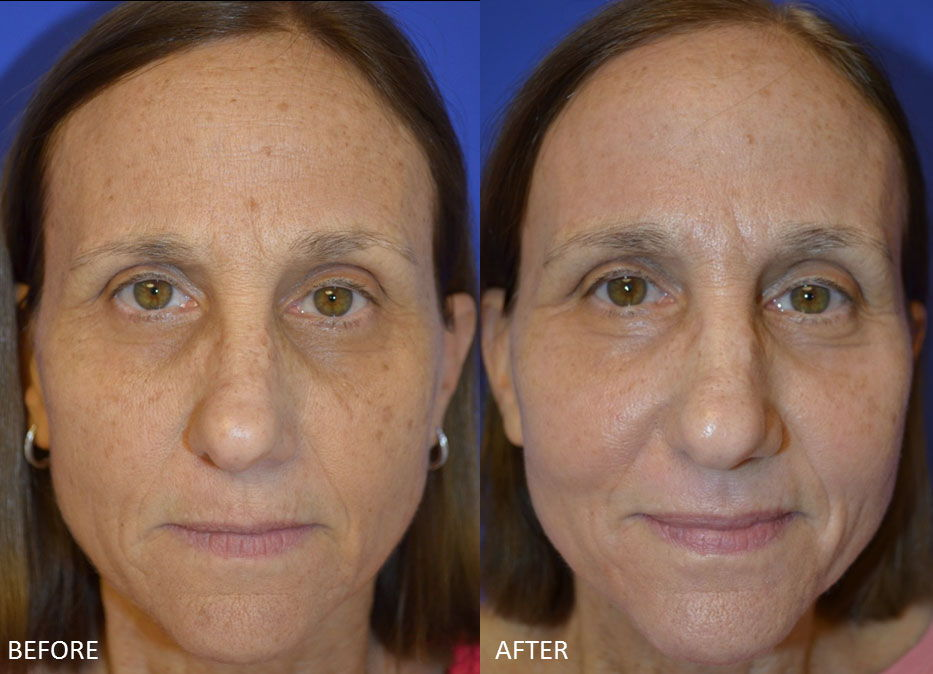 Before & After Fractional Co2 Laser Resurfacing 5