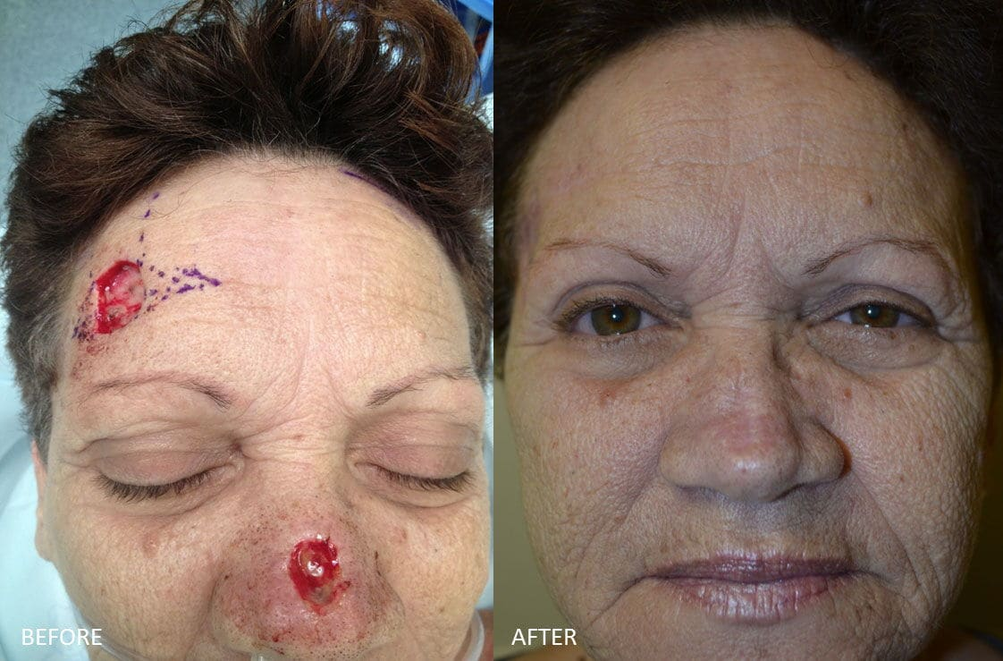 Facial Reconstructive Surgery after skin cancer removal