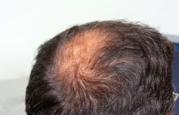 Houston TX Hair Replacement Treatments