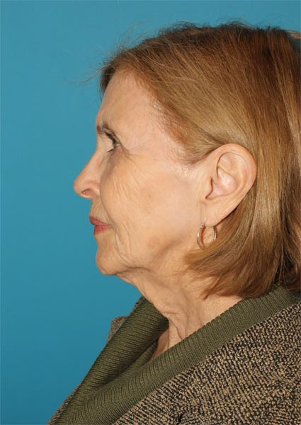 facelift necklift patient before photo Houston, TX