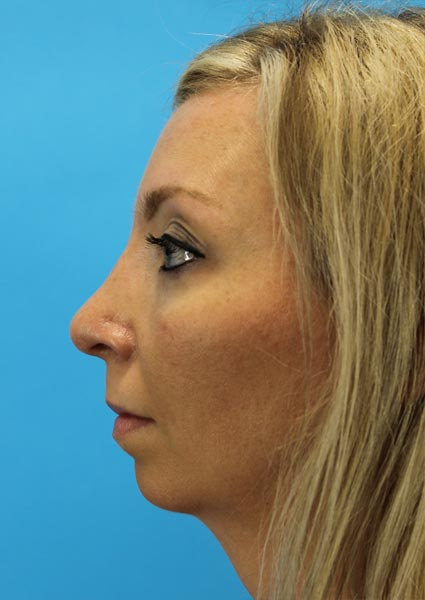 rhinoplasty patient after photo Houston, TX